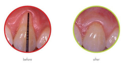 Guided Tissue Regeneration Before and After