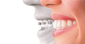 Dental Implants Instead of Braces