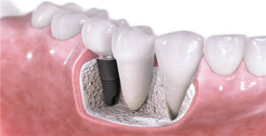 Dental Implants Replacing Single or Multiple