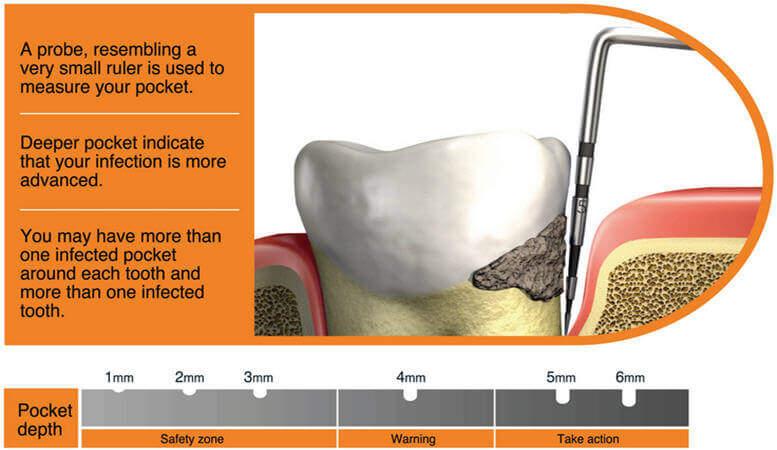 Non Surgical Treatment Methods of Periodontal Desease