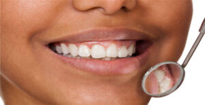 Periodontal Gum Disease Treatment | NYC Periodontist