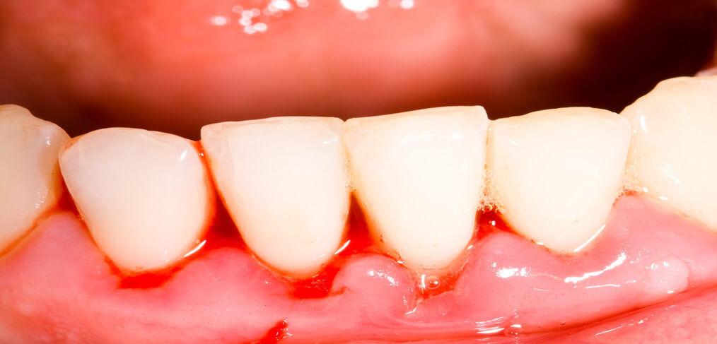 Diabetes Gum Disease Look After Your Teeth And Gums