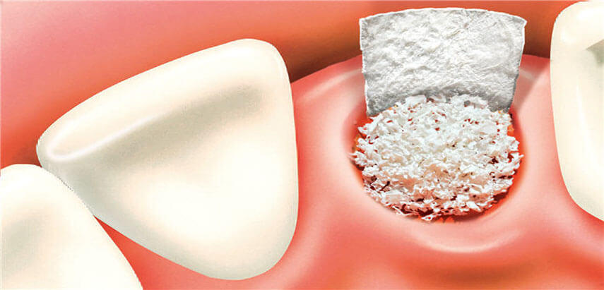Bone Grafting Nyc Why Bone Grafts Are Needed