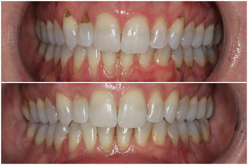 Soft Tissue Gum Graft Before Amp After Periodontist Nyc