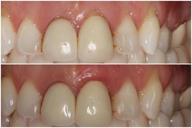 soft tissue augmentation for implant dentistry pdf