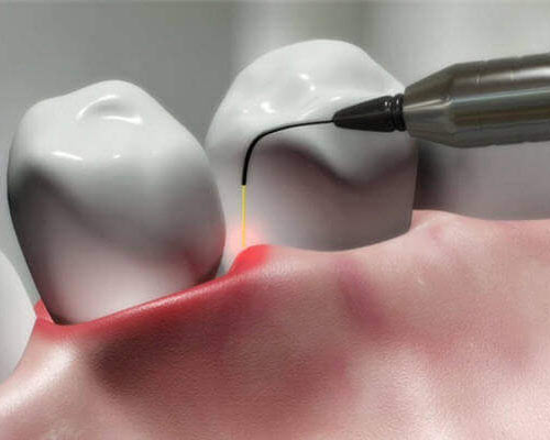 Laser Gum Surgery Treatment - Midtown Manhattan, NYC | Periodontist