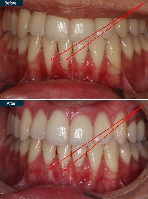 Periodontal Gum Disease | NYC Periodontist, Upper East Side