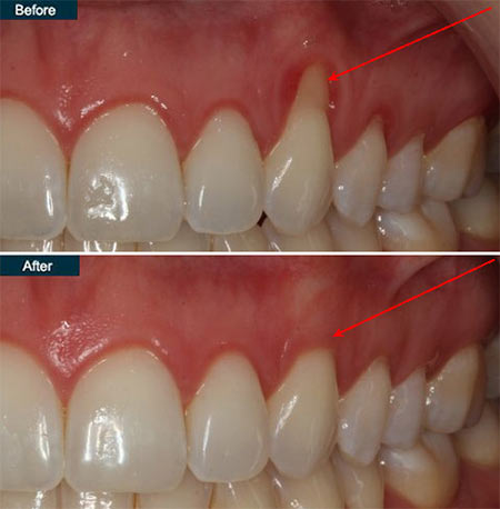 Receding Gums Treatment in NYC - New York Periodontist Dr