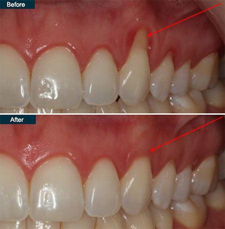 Receding Gums Treatment in NYC - New York Periodontist Dr. Rahmani